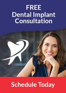 free-dental-implant-consultation